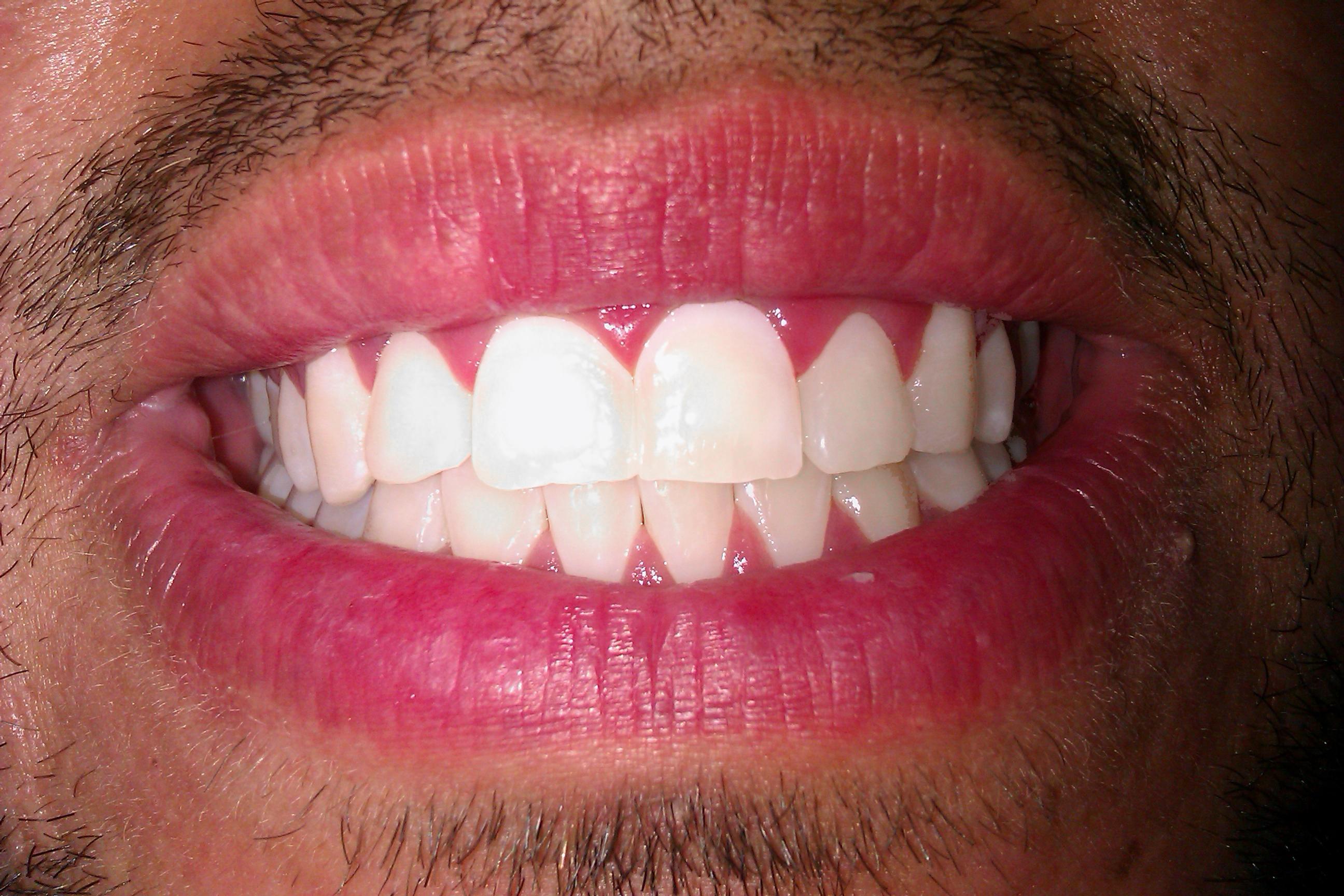 How Do I Make My Teeth White Naturally